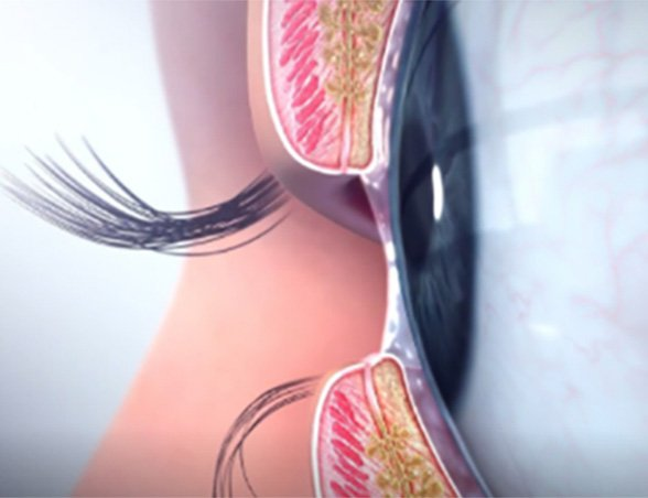 Meibomian Gland Dysfunction image